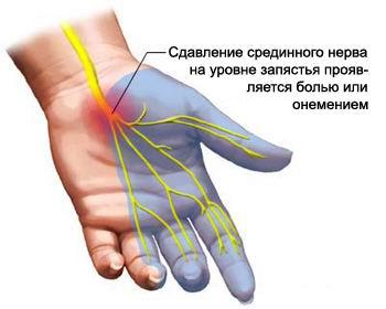 Болят и хрустят суставы запястья кокс артроз тазобедренных суставов инвалидность